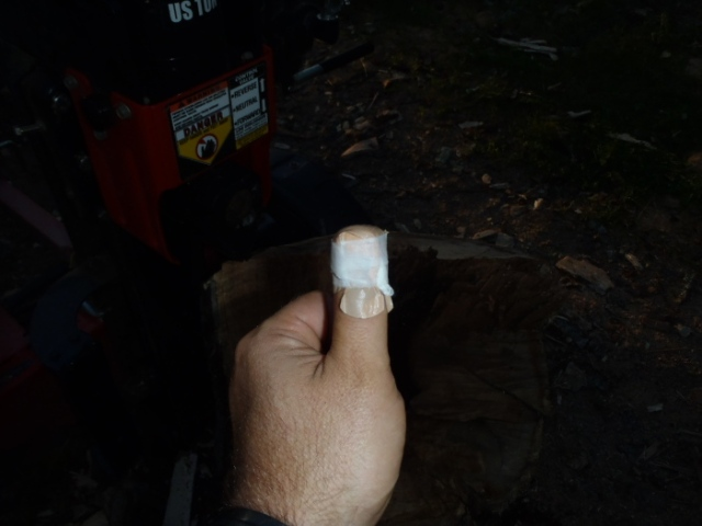 "I protected the heavy steel splitting wedge from unslightly scratches by keeping my thumb between it and a wildly unbalanced block of wood. Note: if you roll a 140 pound block of wood into an area 1"" too short you will learn a valuable lesson. Yes, I carry a first aid kit. Also, if you damage a finger on a 27 ton ram and it happens when the engine is off, that's about the best case scenario. (Also, I was wearing heavy leather gloves too. I hate to think what would have happened without them. My hitchiking career would be over!!)"